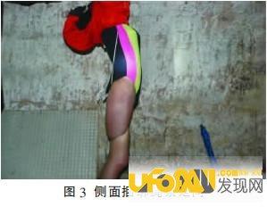 重庆红衣男孩事件最后的真相:匡志均大人物续命是真的吗