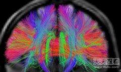 通过对大脑的扫描或可阅读人类思维