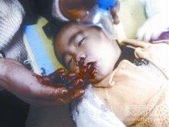 真实版异形:三岁男孩咳出怪异肉