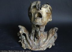 欧洲科学家发现一个古老的前年前干尸头颅