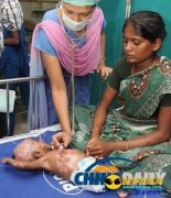 印度男婴患罕见怪病 出生3个月身体自燃4次